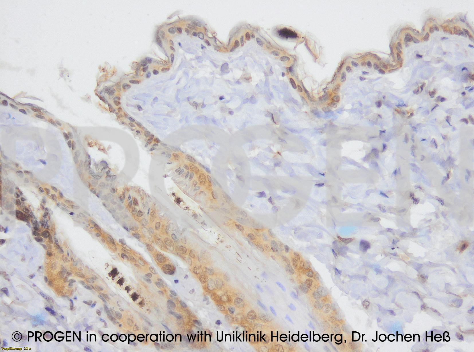 anti-Desmocollin 1 mouse monoclonal, Dsc1-U100, lyophilized, purified