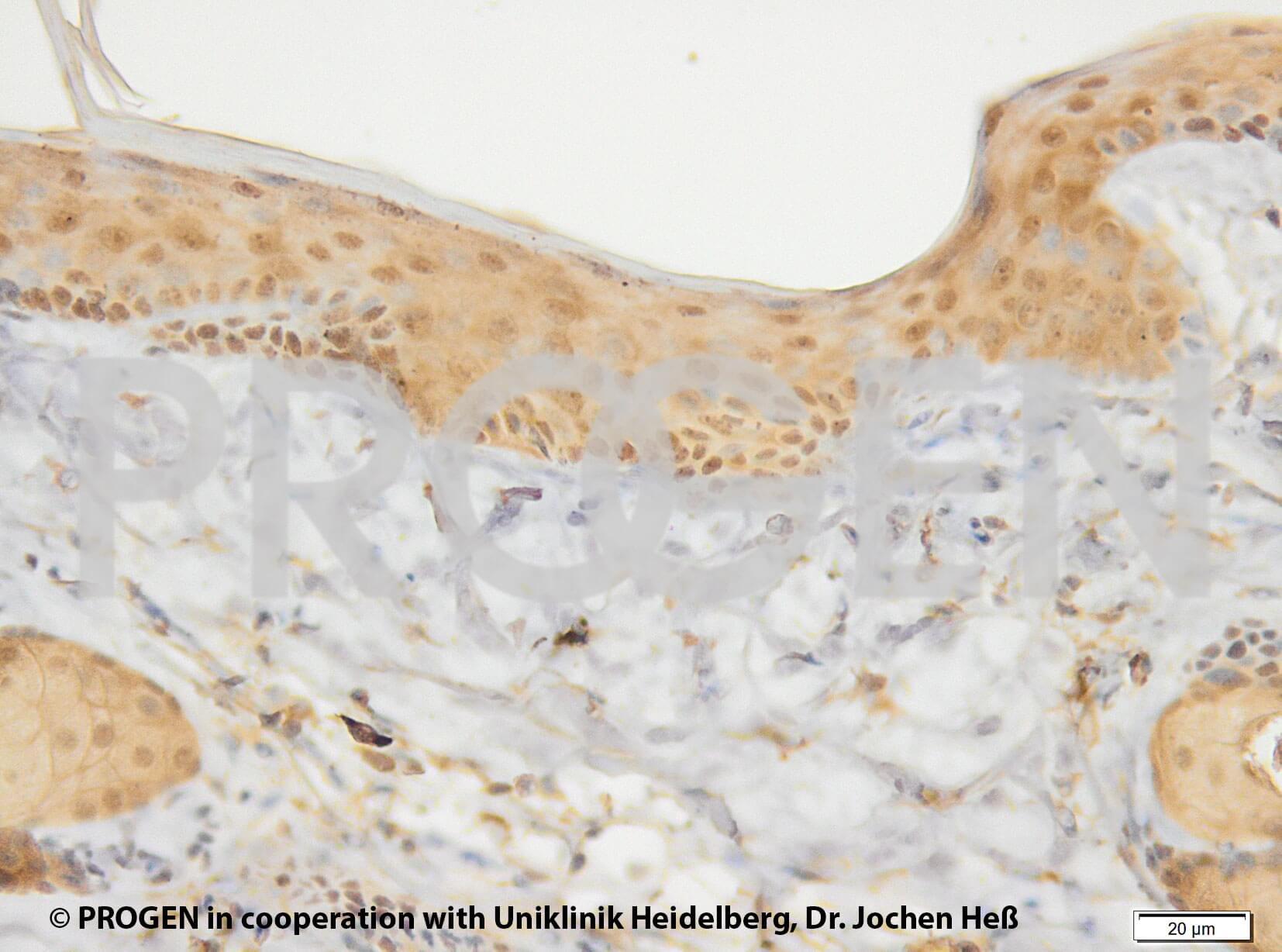 anti-Keratin K17 mouse monoclonal, Ks17.E3, lyophilized, purified