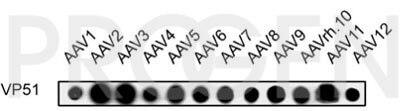 anti-AAV VP1/VP2/VP3 rabbit polyclonal (VP51), serum
