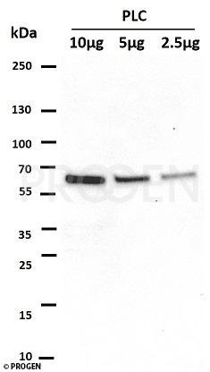 anti-p62/ SQSTM1 (C-terminus) + positive western blot control