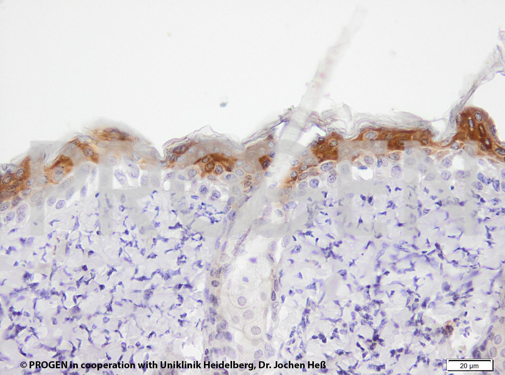 anti-Keratin K6 (C-terminus) guinea pig polyclonal, serum