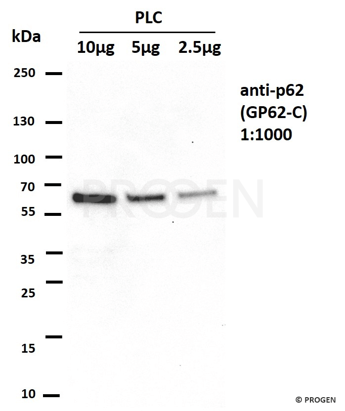 anti-p62/ SQSTM1 (C-terminus) guinea pig polyclonal + anti-guinea pig IgG HRP set