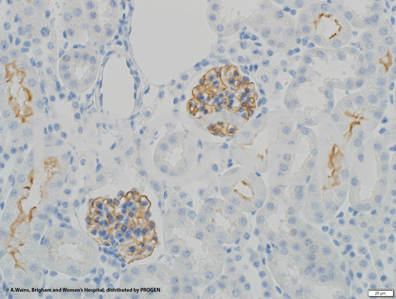 anti-Synaptopodin/SYNPO (C-terminus) guinea pig polyclonal, serum