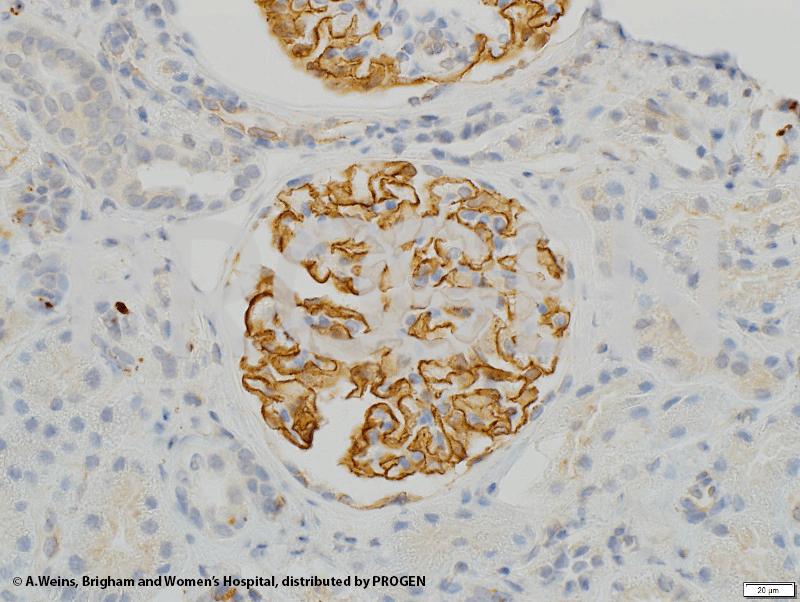 anti-Synaptopodin/SYNPO (N-terminus) guinea pig polyclonal, serum
