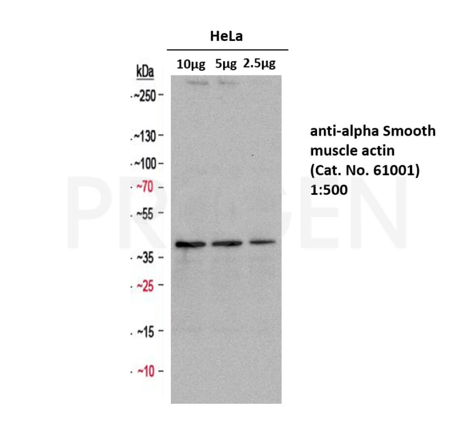 anti-alpha-Smooth Muscle Actin mouse monoclonal, 1A4/ASM-1, lyophilized, purified