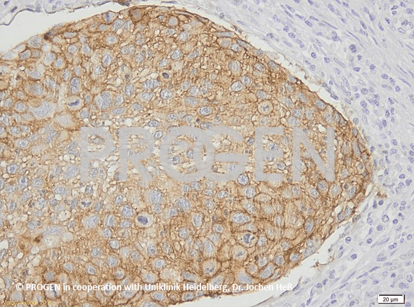 anti-EP-CAM mouse monoclonal, HEA125, lyophilized, purified
