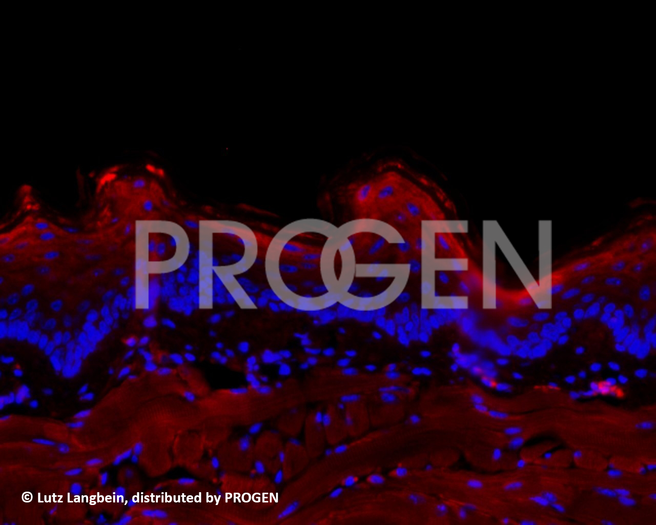 anti-Keratin K13 mouse monoclonal, Ks13.1, prediluted, purified, ready-to-use