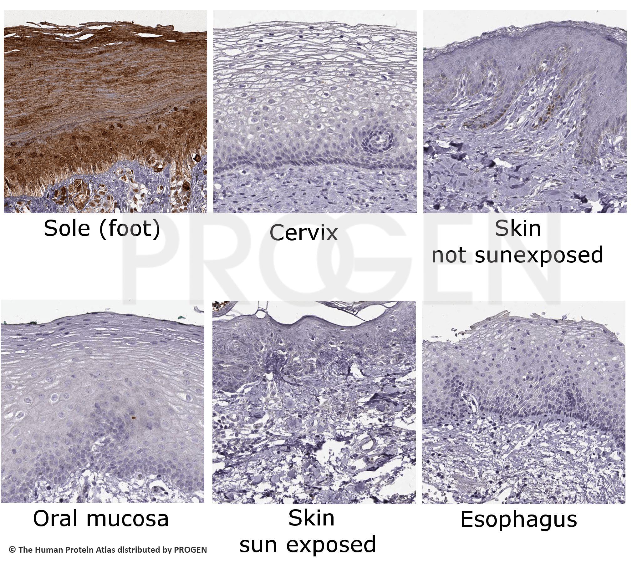 anti-Keratin K9 mouse monoclonal, Ks9.70 + Ks9.216, supernatant