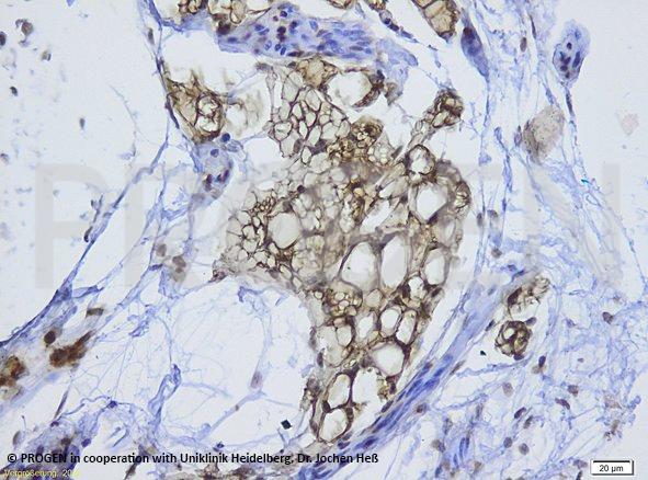 anti-Perilipin 1 (N-terminus) guinea pig polyclonal, serum