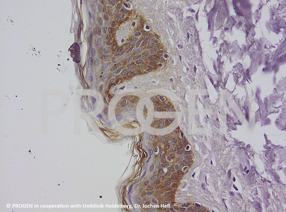 anti-Keratin Pan guinea pig polyclonal, serum, sample (ready-to-use)