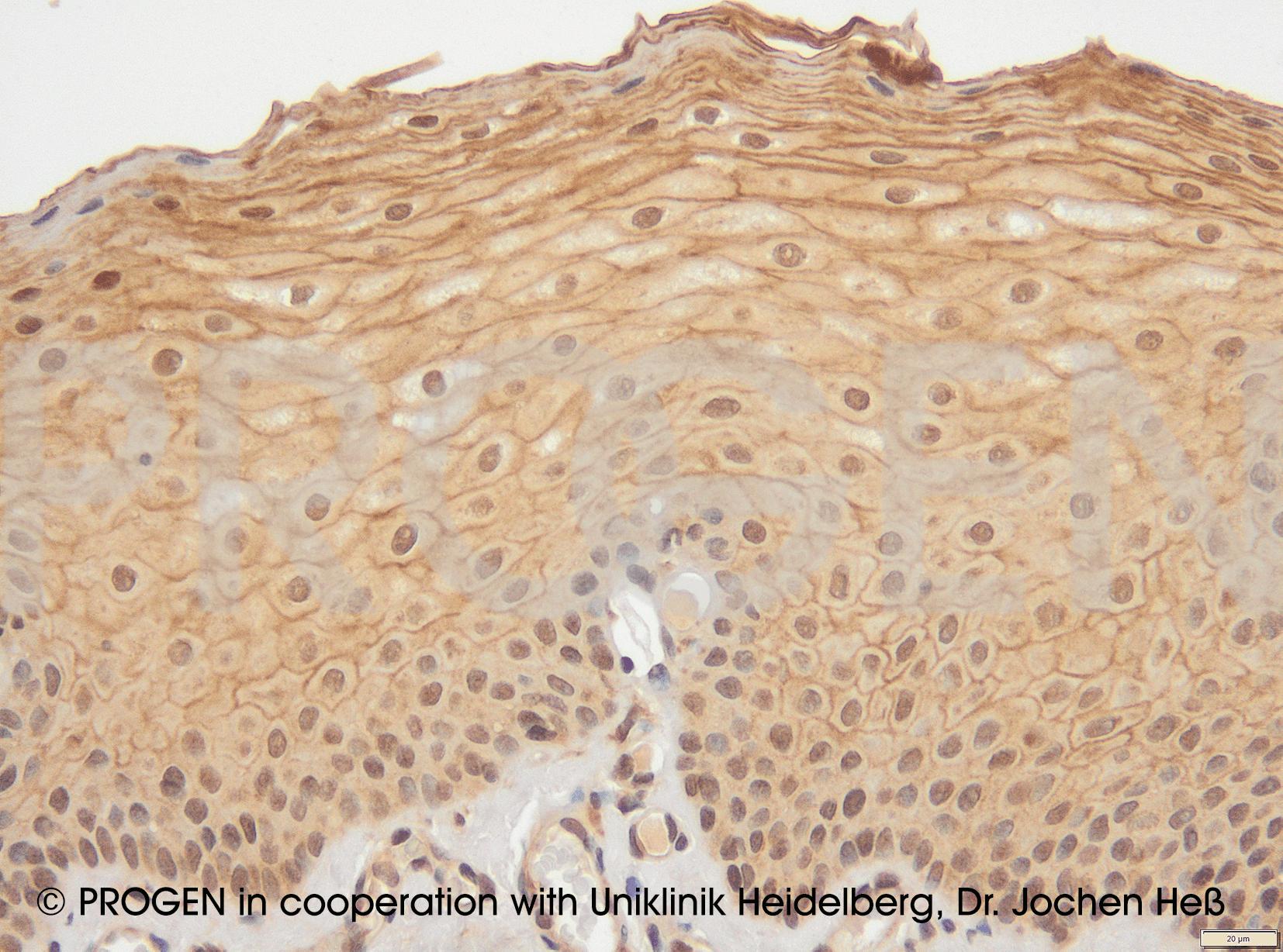 anti-Desmoglein 1 mouse monoclonal, Dsg1-P124, supernatant