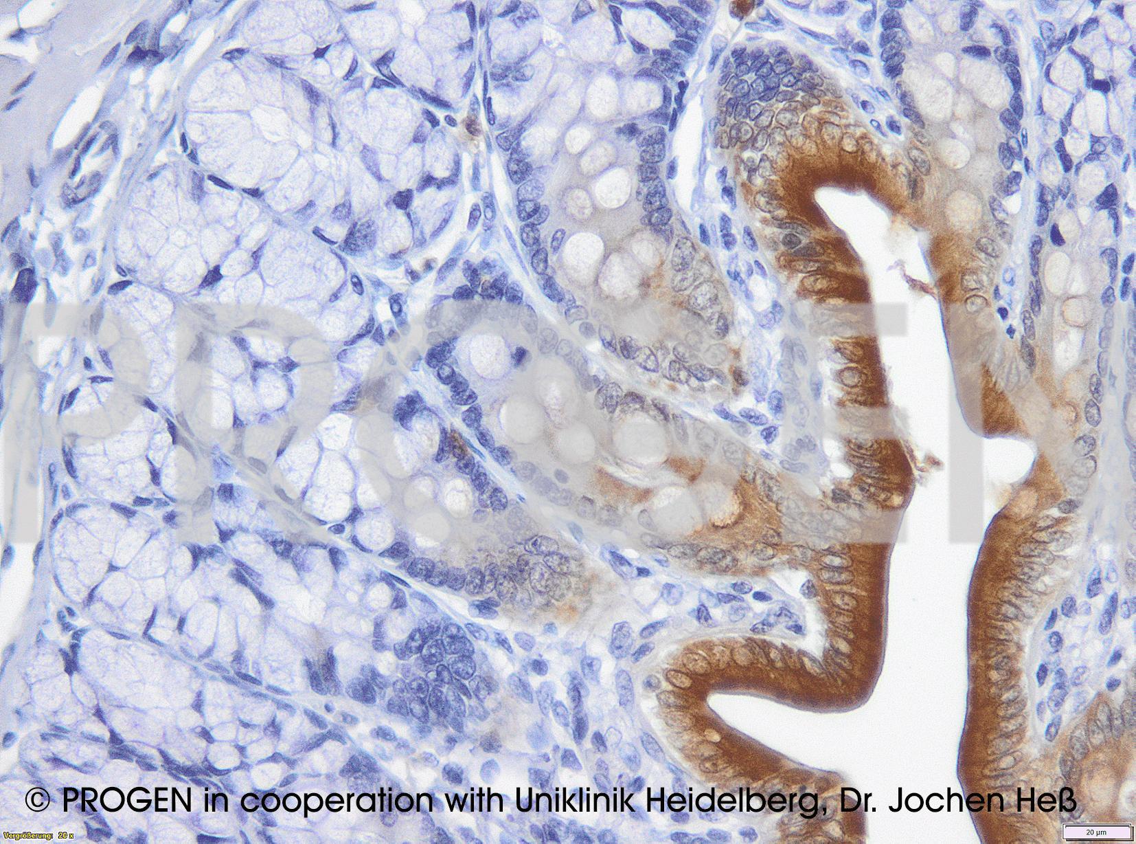 anti-Keratin K20 mouse monoclonal, IT-Ks20.8, prediluted, purified
