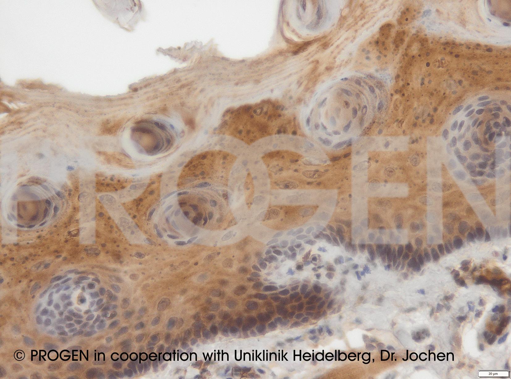 anti-Desmocollin 3 mouse monoclonal, Dsc3-U114, purified, sample (ready-to-use)