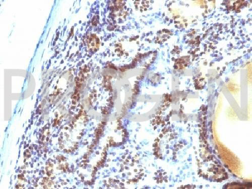 anti-MAP3K1 mouse monoclonal, EBS-T-008, purified