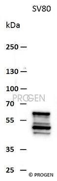 anti-Vimentin mouse monoclonal, VIM 3B4, lyophilized, purified