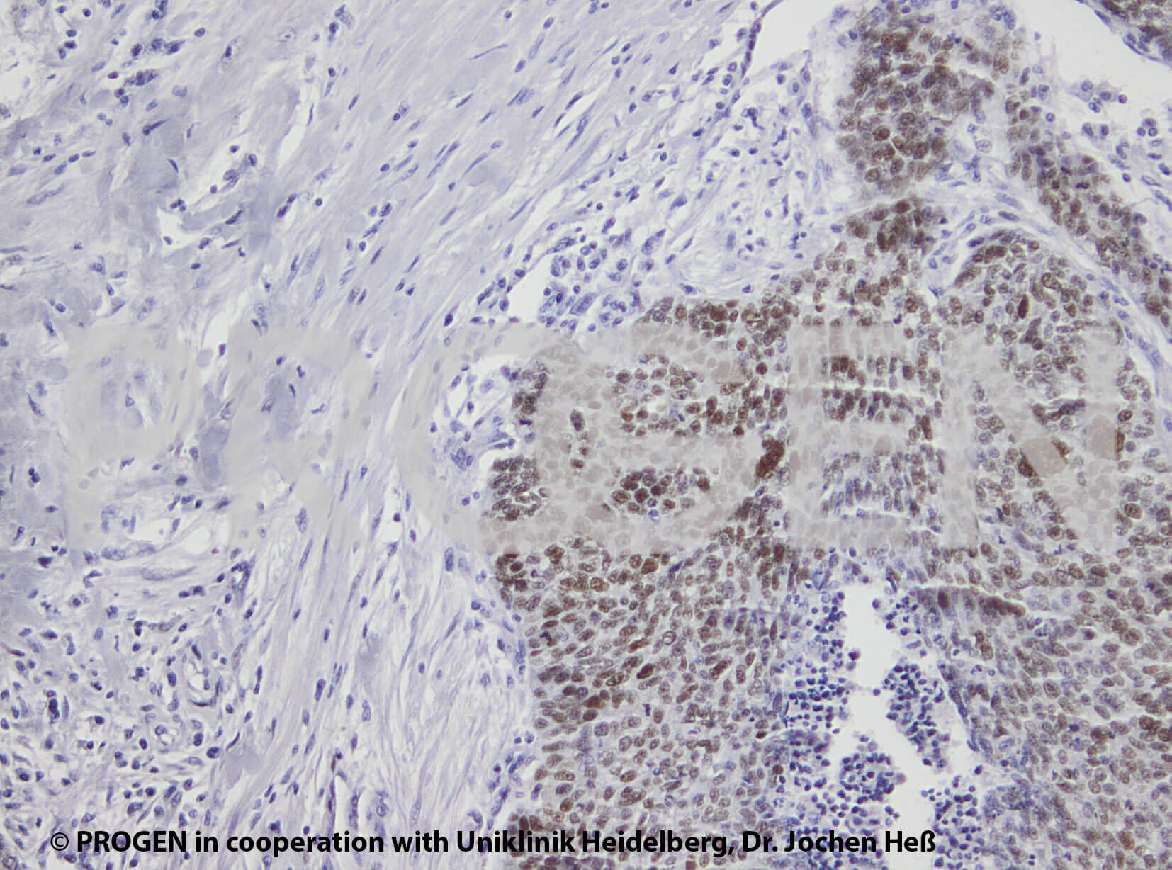 anti-p53 Protein mouse monoclonal, Bp53.11, lyophilized, purified