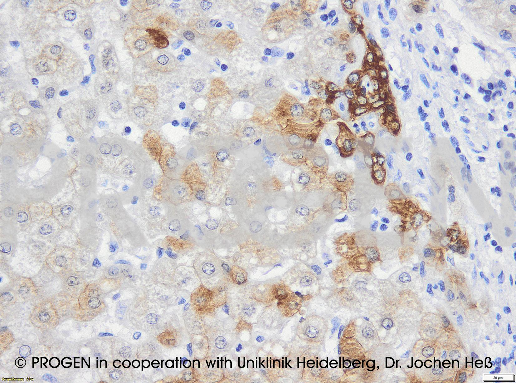 anti-Keratin K18 mouse monoclonal, Ks18.04, purified, sample (ready-to-use)