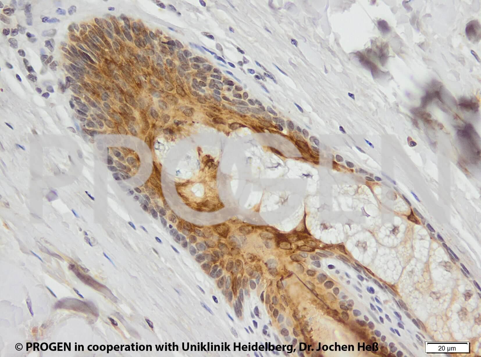 anti-Keratin K6 mouse monoclonal, KA12, prediluted, purified