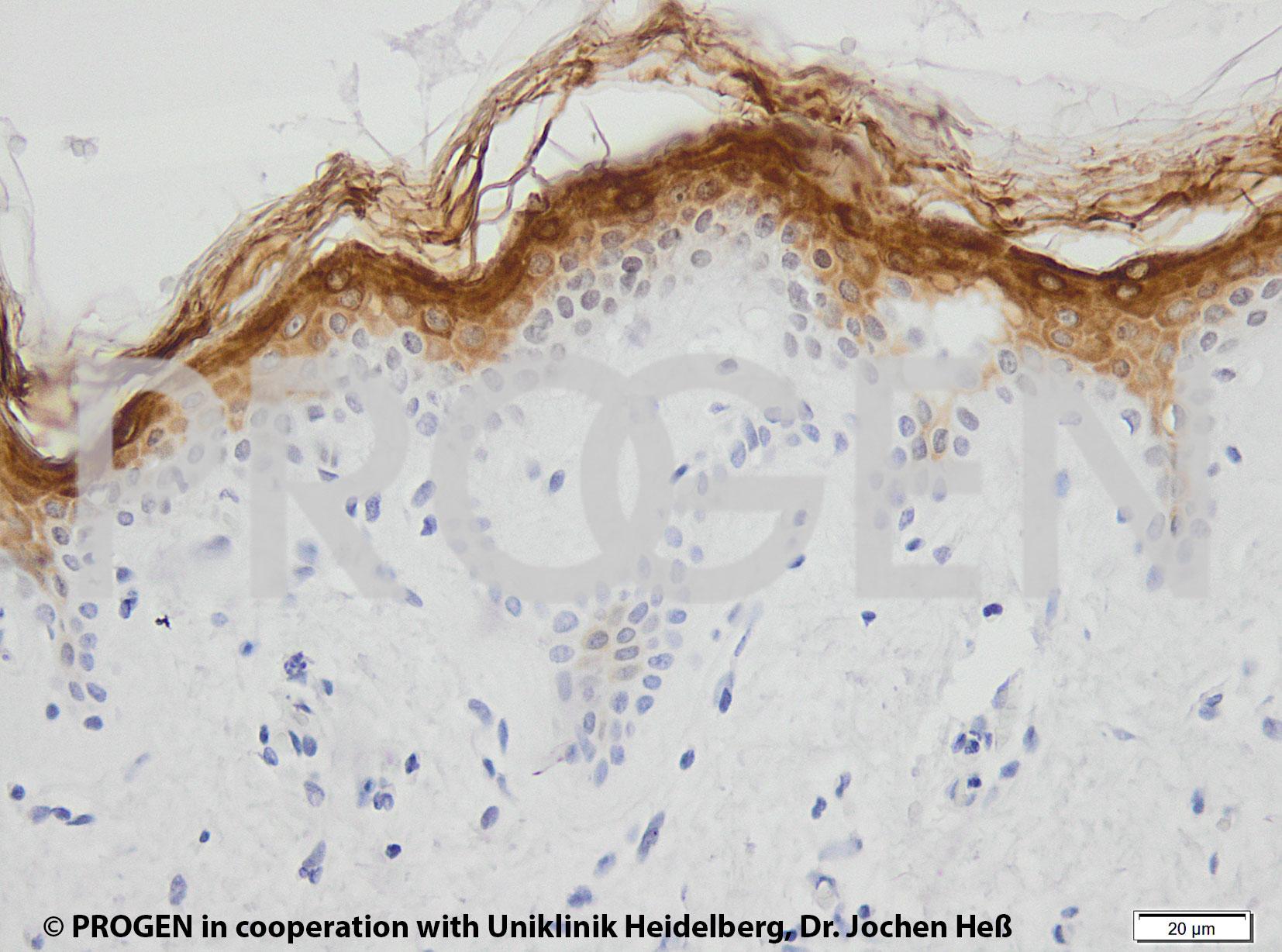 anti-Keratin K2 mouse monoclonal, Ks2.342.7.4, supernatant