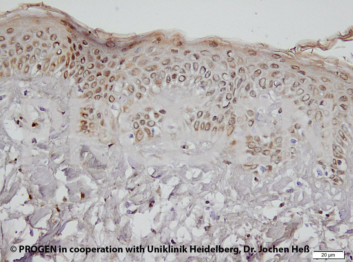 anti-Perilipin 2 (N-terminus aa 1-29) guinea pig polyclonal, serum, sample (ready-to-use)