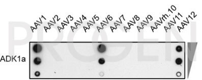 anti-AAV1 (intact particle) mouse monoclonal, ADK1a, lyophilized, purified, sample