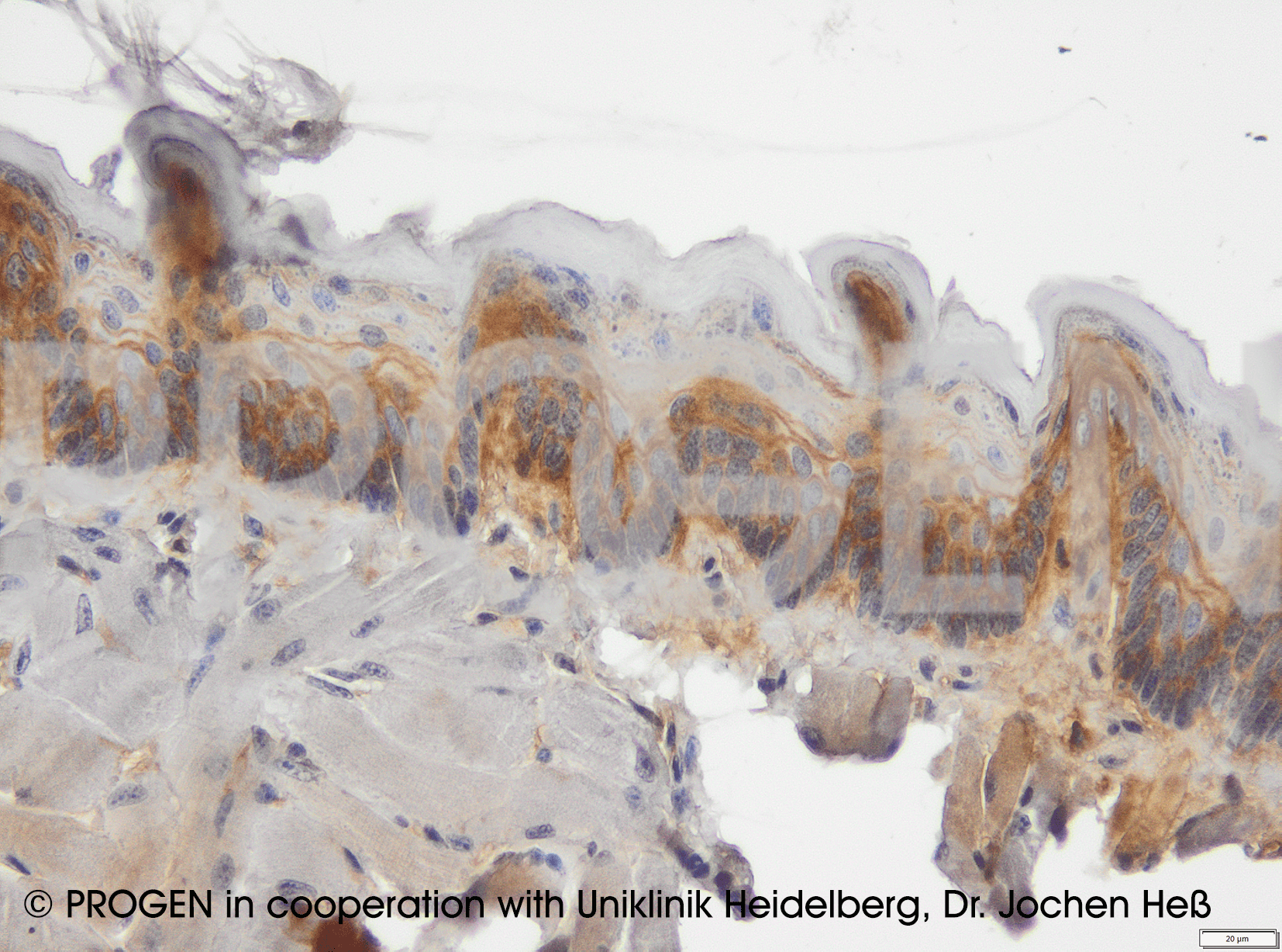 anti-Desmoglein 1-4 sample set